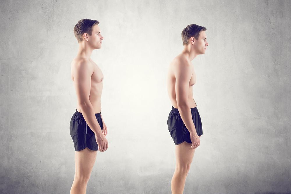 Posture Moncton Chiropractor