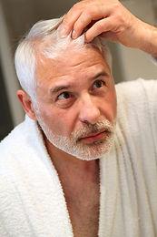 bigstock-Senior-man-with-hair-loss-prob-