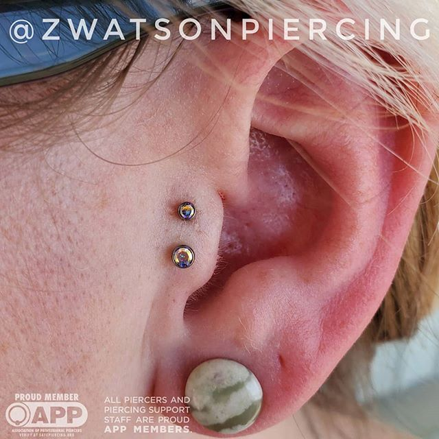 Here we have a double tragus from the co