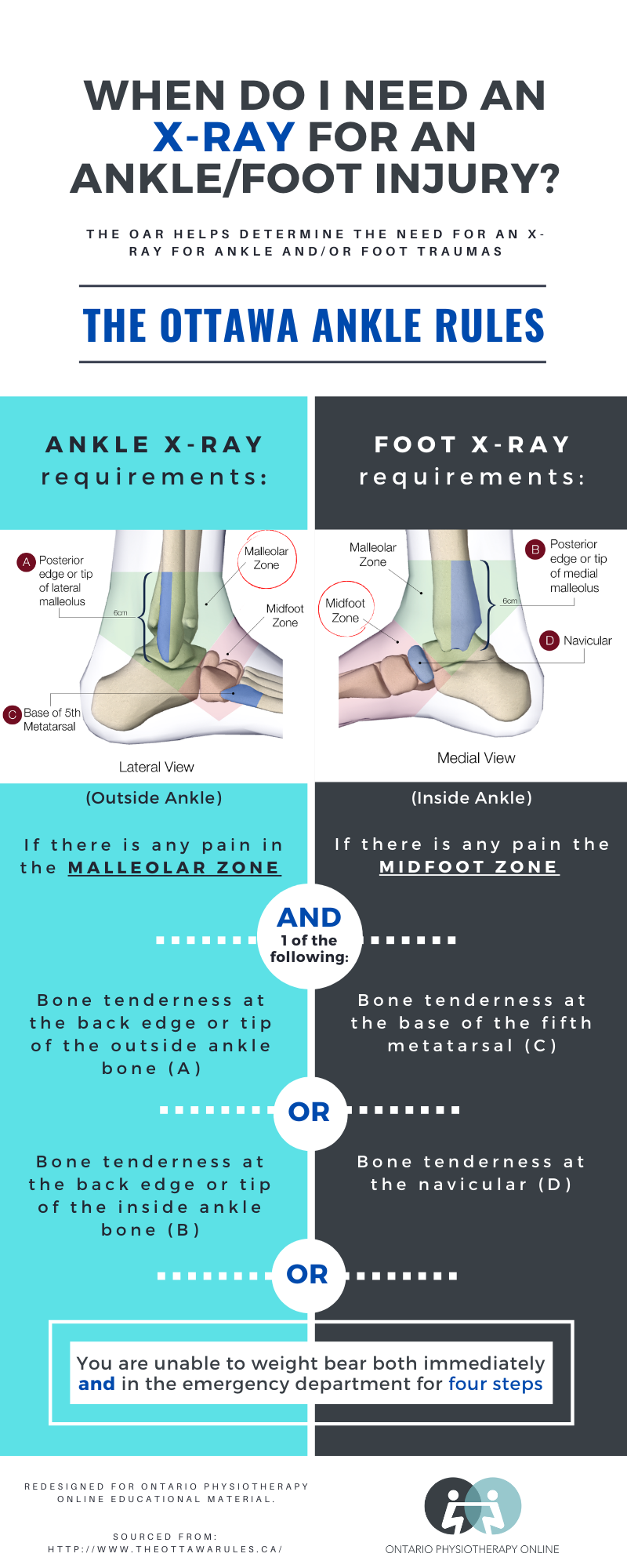 Ottawa Ankle Rules X-ray