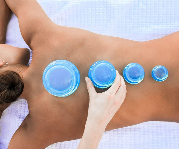 Cupping in a Remedial Massage