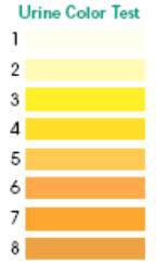 urine color test