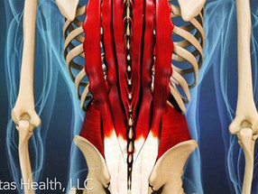 Best Lift for Back Pain