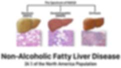 liver%2520_edited_edited.jpg