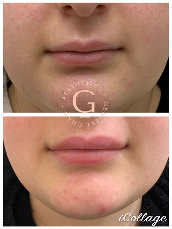 before and after 1ml of lip fillers