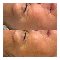 Before & After a Luxury Dermaplaning Facial