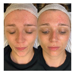 Before & After a Luxury Hydrating Dermaplane Facial