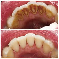 Different Types of Dental Cleanings