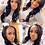 Thumbnail: Luxury Upart Wigs