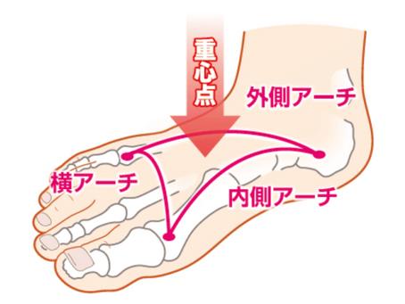 踵の痛み、足の裏のアーチとの関係