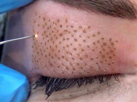 The Anti-Gravity Effect: Plasma Fibroblast Skin Tightening