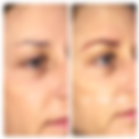 permanent_makeup_gallery_05-125x125.png