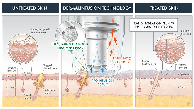 dermalinfusion.png