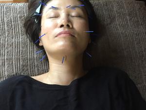 二条サロン☆美容鍼灸体験会