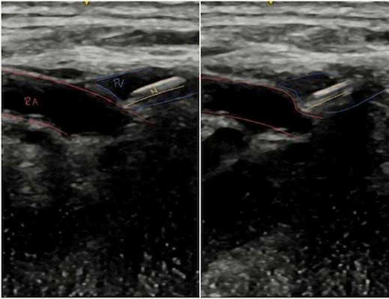 Ultrasound imaging of vessel anatomy for endovascular fistula creation