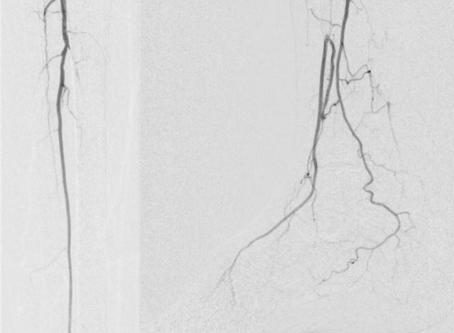Building a Multidisciplinary Limb Salvage Program