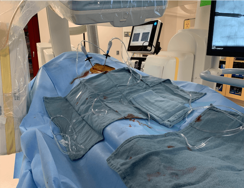 Medtronic OsteoCool Radiofrequency Ablation Procedure Set-Up for Treating Bone Metastases