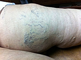 varices (spiders)