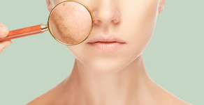 Melasma e a importância do protetor solar no cuidado com a pele