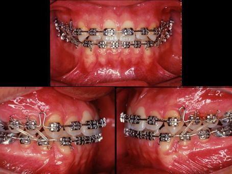 Elásticos de Intercuspidação: a importância do uso correto durante o tratamento ortodôntico