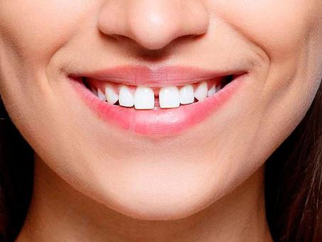 Diastema: Questão de saúde bucal ou estética?