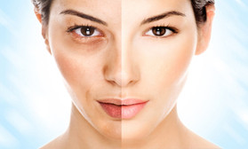 Reset for Fat Loss, Glowing Skin and Clear Eyes