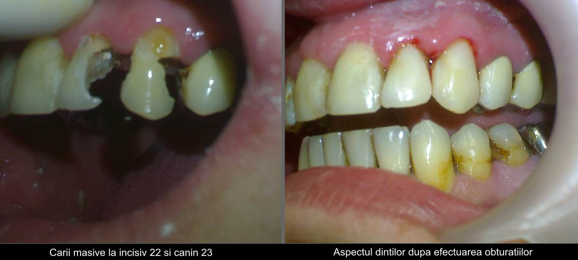 Incisor and canine large cavities