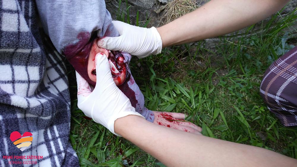 Simulace krvácení