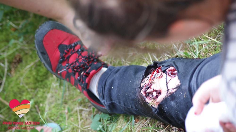Masivní krvácení