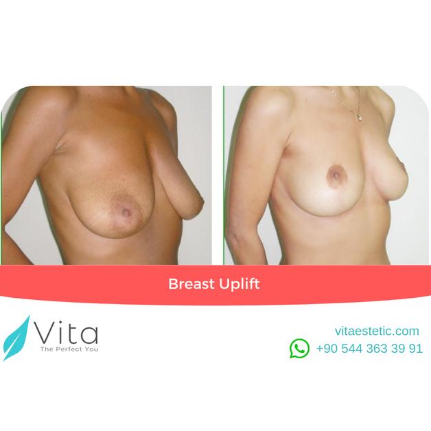 Breast Uplift in Turkey | Before-After | Vita Estetic