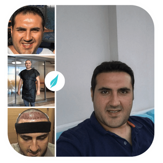 Dr Kinyas DHI Hair Transplant in Turkey Before After.png