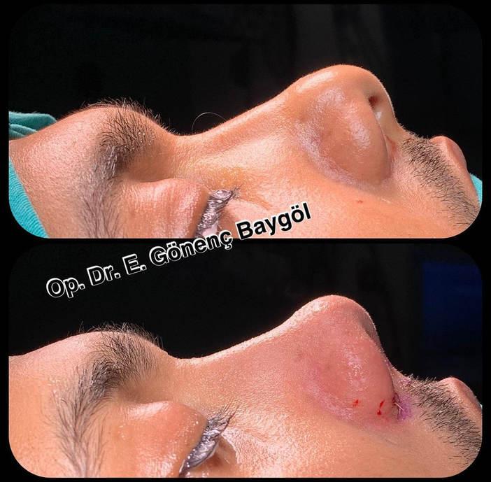Rhinoplasty in Turkey Before-After | Dr Emre Gonenc Baygol