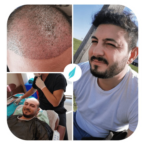 DHI in Turkey before after - Dr Kinyas6.png