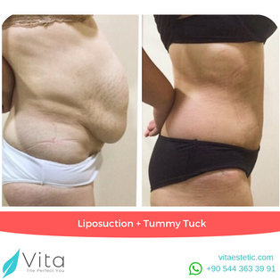 Liposuction + Tummy Tuck in Turkey | Abdominoplasty | Before - After | Vita Estetic