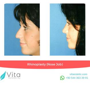 Rhinoplasty in Turkey | Before-After | Vita Estetic