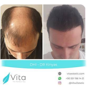 Dr Kinyas Hair Transplant Before After