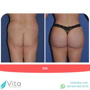 Brazilian Butt Lift | BBL in Turkey | Before - After | Vita Estetic