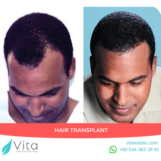 Hair Transplant in Turkey | Before After | Vita Estetic | Turkey