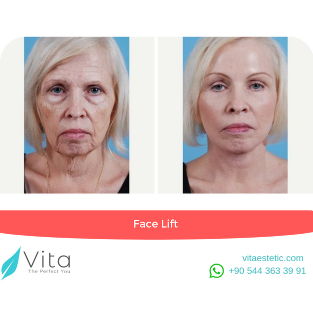 Face Lift | in Turkey | Before - After | Vita Estetic