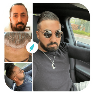 Dr Kinyas DHI Hair Transplant in Turkey Before After  .png