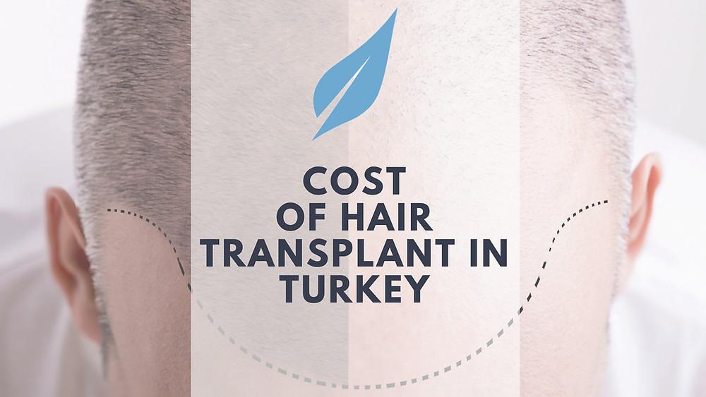 cost of hair transplant Turkey | Affordable hair transplant Turkey | Vita Estetic