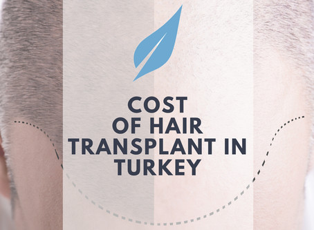 Cost of Hair Transplant in Turkey - Affordable and Dependable