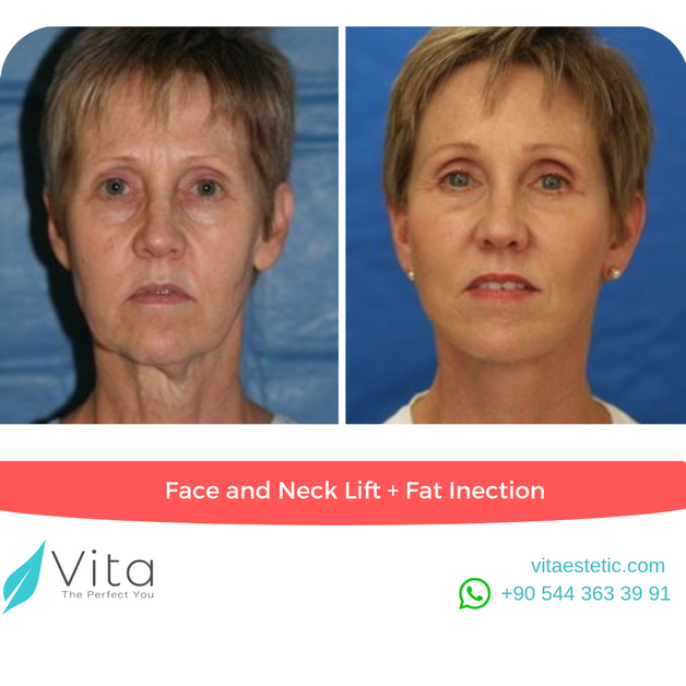 Face and Neck Lift | Fat Injection | in Turkey | Vita Estetic