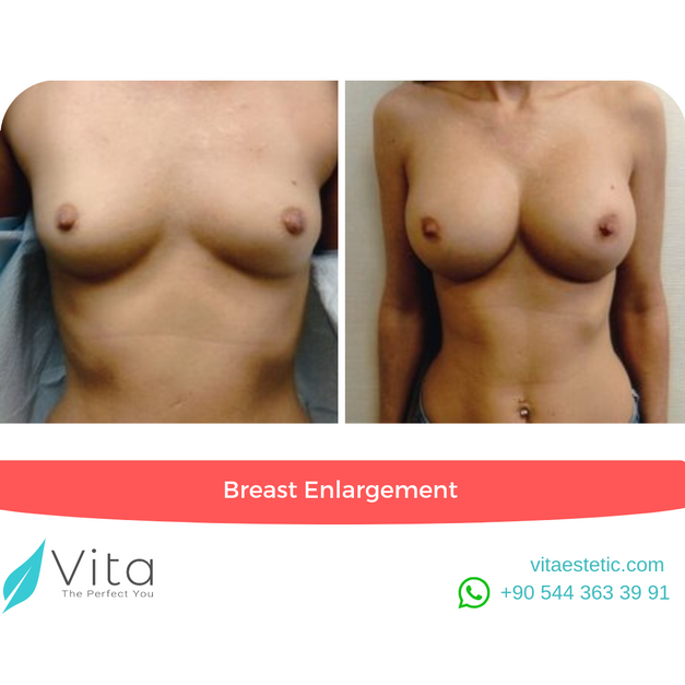 Breast Enlargement | Boob Job in Turkey | Before - After | Vita Estetic