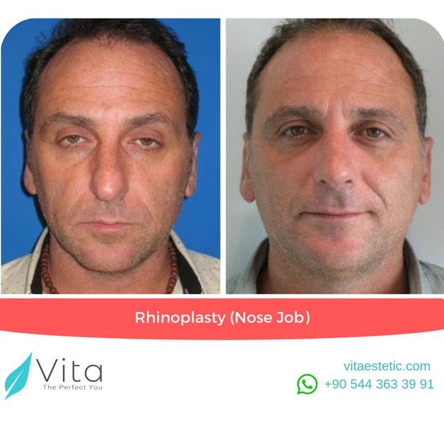 Rhinoplasty in Turkey | Nose Job Before-After | Vita Estetic