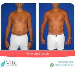 Vaser Liposuction in Turkey | Abdominoplasty | Before - After | Vita Estetic
