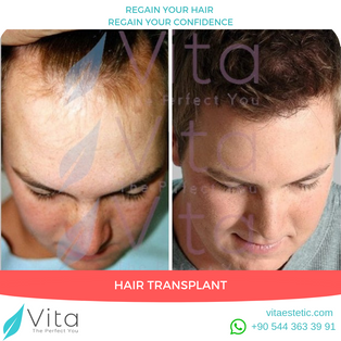 Hair Transplant in Turkey | Before After | Vita Estetic | Istanbul