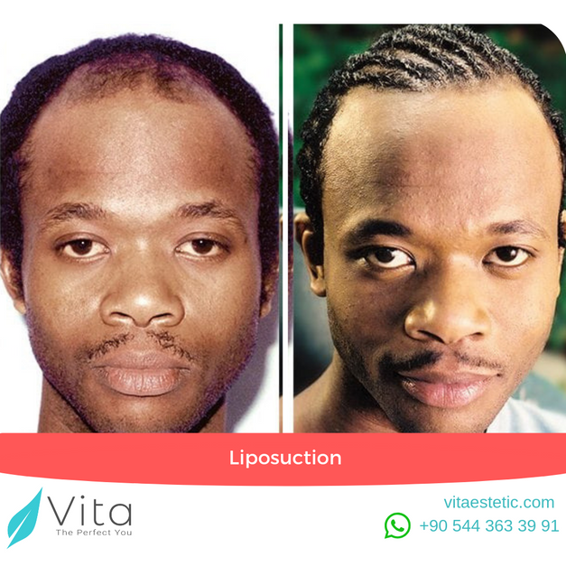 Hair Transplant in Turkey | Before After | Vita Estetic | Istanbul