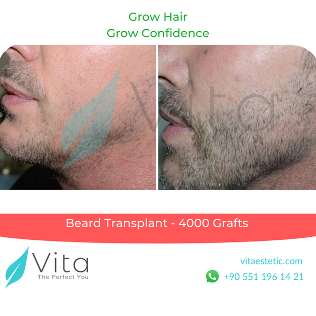 Beard Transplant Before After