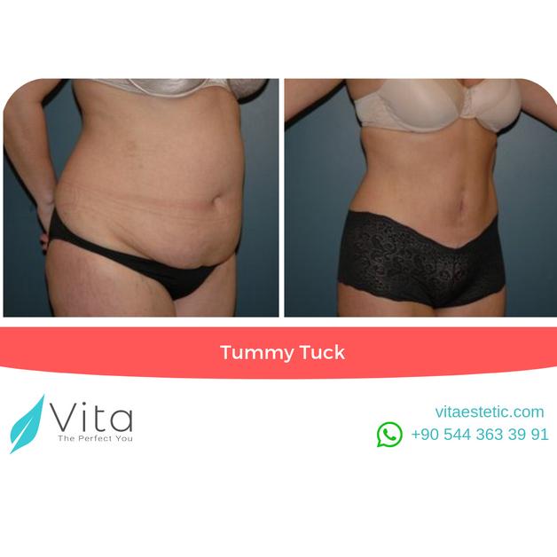 Tummy Tuck in Turkey | Abdominoplasty | Before - After | Vita Estetic